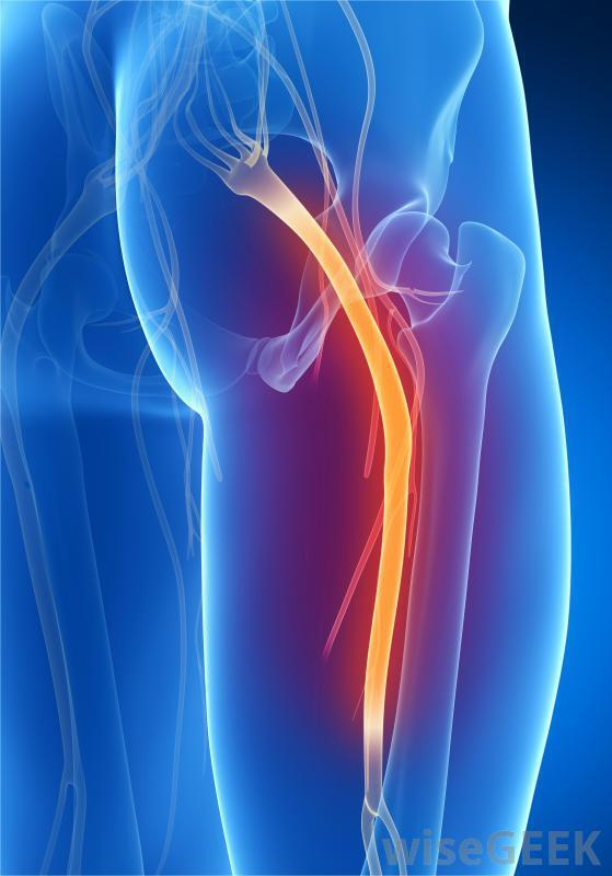 Sciatica Types - Differential diagnosis Osteopathy approach