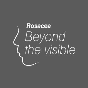 Rosacea: Beyond the visible