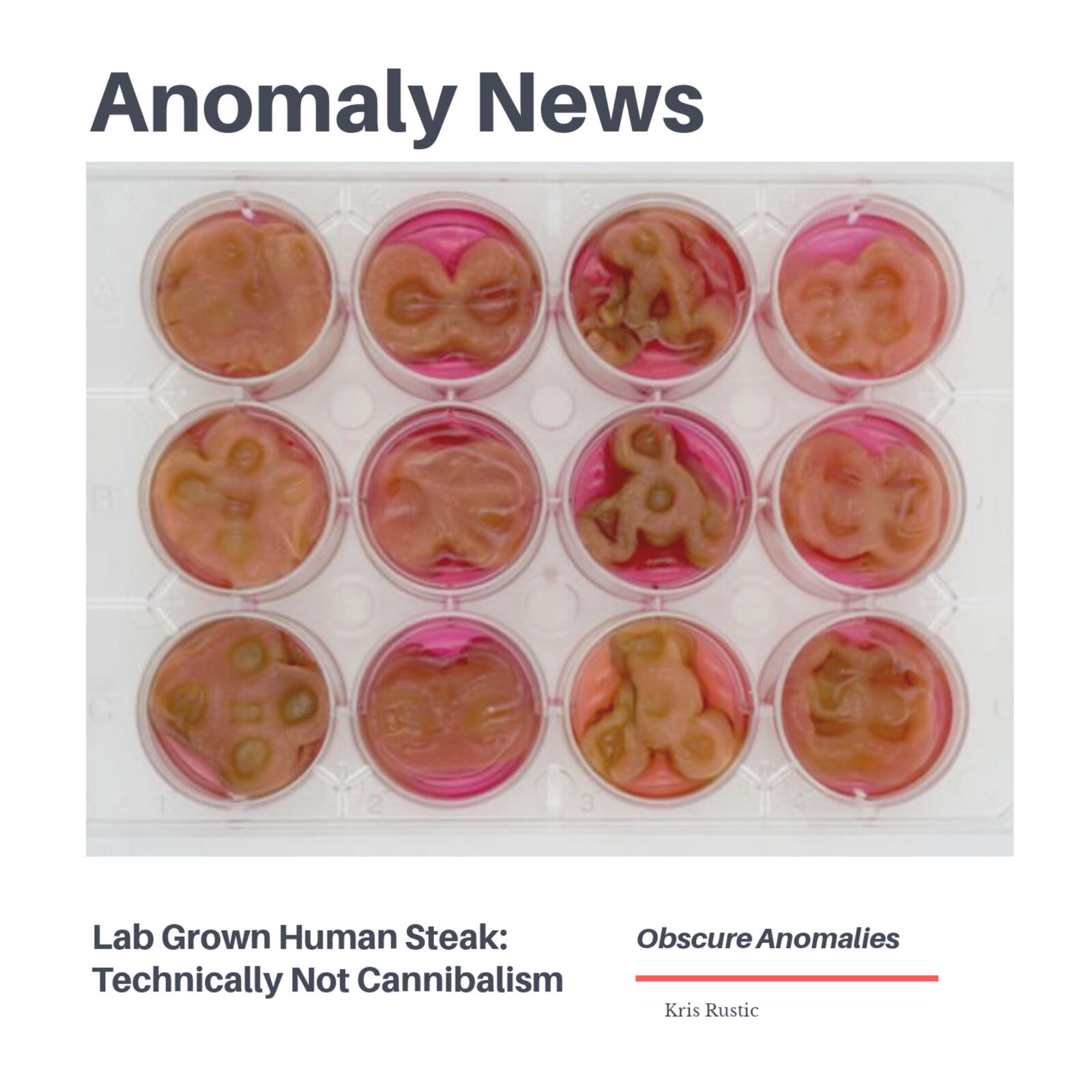 Anomaly News: Lab Grown Human Steaks: Technically Not Cannibalism